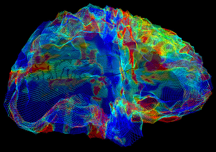 /SVG/new_svg_images/Alzheimers_brain.png