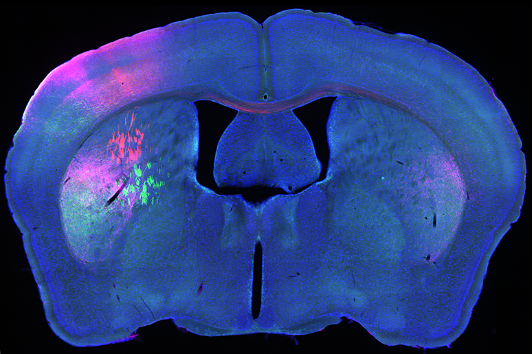 /SVG/new_svg_images/Mouse_mid_brain_fluorescent_tract_tracing.png