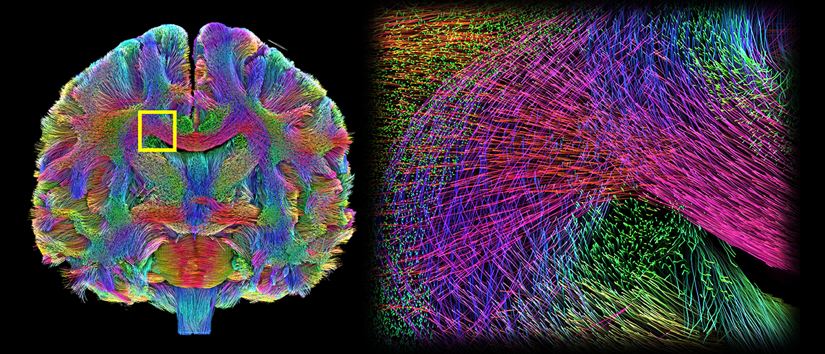 /SVG/new_svg_images/Multiscale_Tractography.png