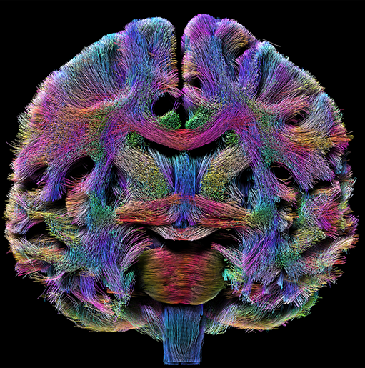 /SVG/new_svg_images/Tractography_Coronal.png